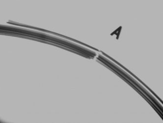 X-ray of broken bead wires